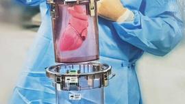 Tıp dünyasında çığır açacak cihaz Türkiye'ye geliyor