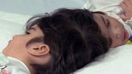 Dünya bu ameliyatı konuşuyor 100 doktor girdi 50 saatte yapışık ikizler...