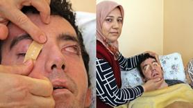 6 yıldır gözlerini kırpamıyor gözleri bantla kapatılıyor