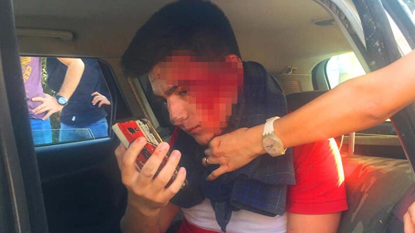 Araçta sıkıştı, yüzünü kontrol için telefonla fotoğraf çekti