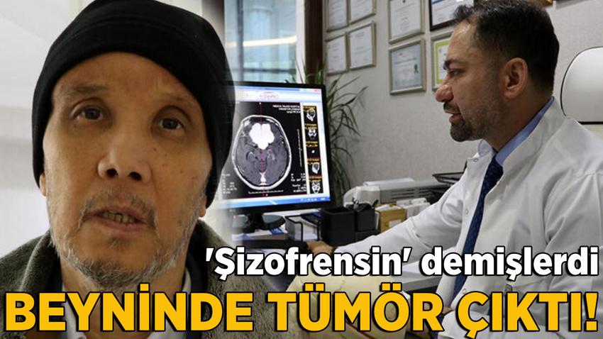 'Şizofrensin' demişlerdi! Beyninde portakal büyüklüğünde tümör çıktı