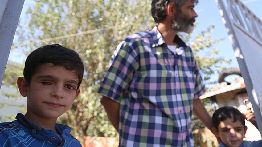 Suriyeli Mahmut protez göze kavuşuyor