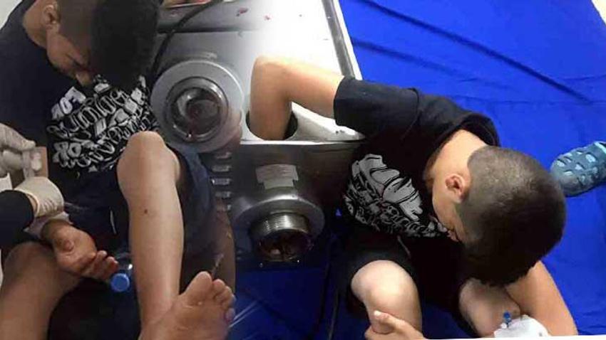 14 yaşındaki çocuk elini kıyma makinesine kaptırdı