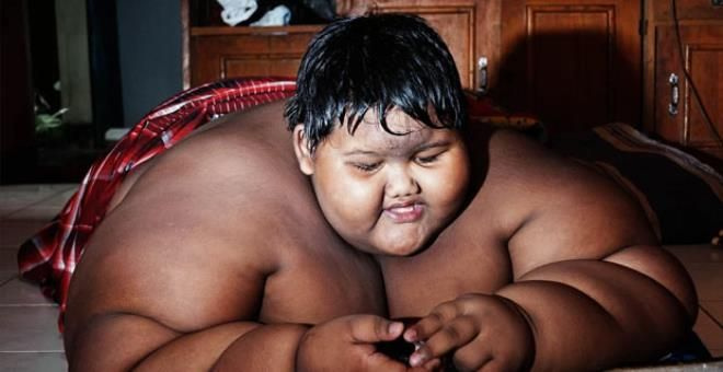 Dünyanın en şişman çocuğuydu, tam 110 kilo verdi! - Sayfa 1
