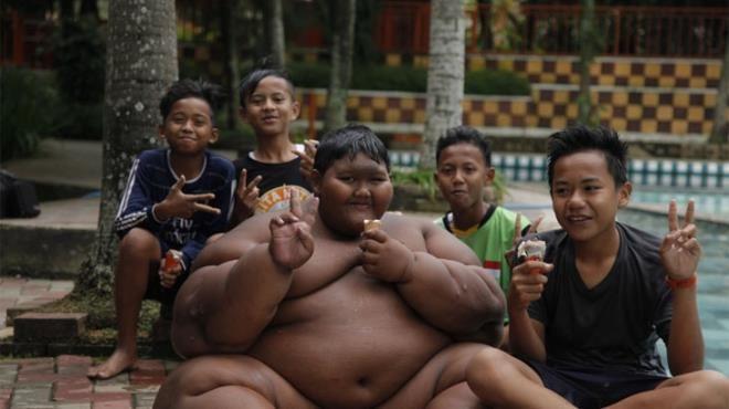 Dünyanın en şişman çocuğuydu, tam 110 kilo verdi! - Sayfa 3