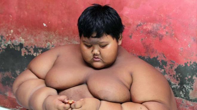 Dünyanın en şişman çocuğuydu, tam 110 kilo verdi! - Sayfa 4