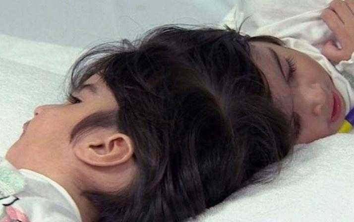 Dünya bu ameliyatı konuşuyor 100 doktor girdi 50 saatte yapışık ikizler birbirinden ayrıldı - Sayfa 1