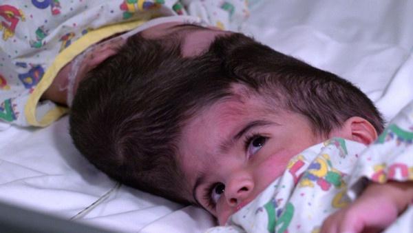 Dünya bu ameliyatı konuşuyor 100 doktor girdi 50 saatte yapışık ikizler birbirinden ayrıldı - Sayfa 2